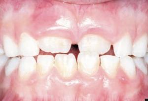 Orthodontie Verhoef Spijkenisse