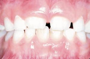 Orthodontist verhoef